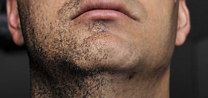 shaving cream for ingrown hair